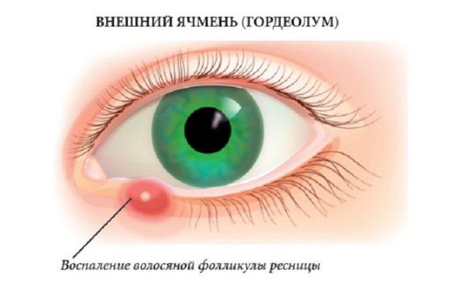 Ячмень на глазу (гордеолум)