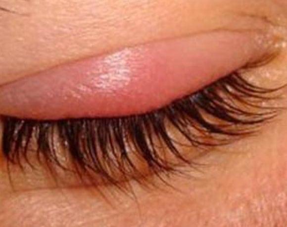 Аллергия на наращивание ресниц
