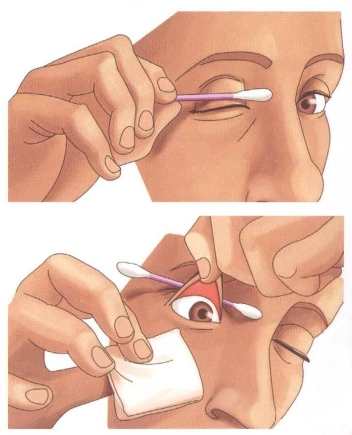 Краткая инструкция по извлечению инородного тела из глаза