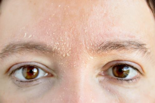 шелушение кожи в бровях