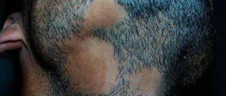 алопеция бороды