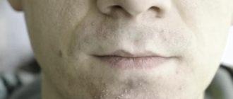 воспаление после бритья