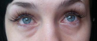 глаза слезятся после наращивания